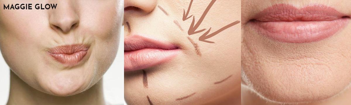 Perawatan yang Tepat untuk Mengatasi Keriput Disekitar Bibir image